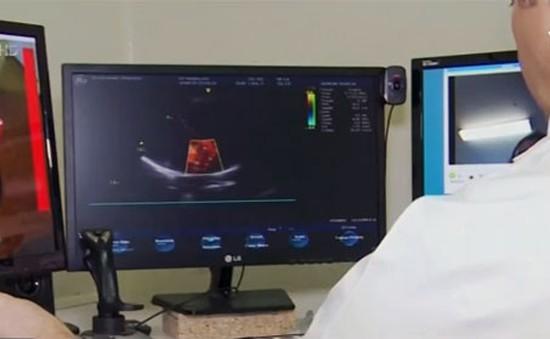 Robot cho phép bác sỹ siêu âm từ xa cho bệnh nhân