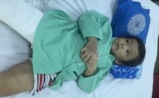 TP.HCM:  Bé trai bị cha mẹ đánh gãy chân đã xuất viện