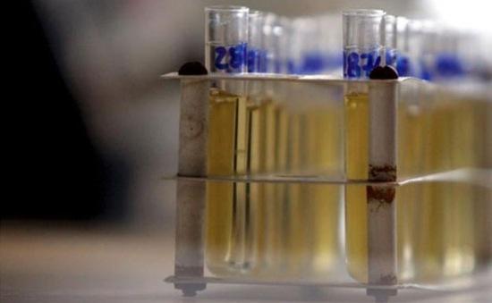 WADA xác nhận 28 trường hợp sử dụng doping tại Olympic 2016