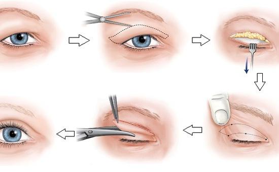 Phẫu thuật tạo hình mí mắt không hề đơn giản