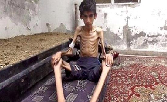 Mỹ lên tiếng về khủng hoảng nhân đạo tại Madaya