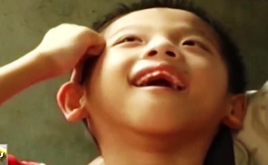 Chất da cam/dioxin hiện hữu thế nào tại Việt Nam?