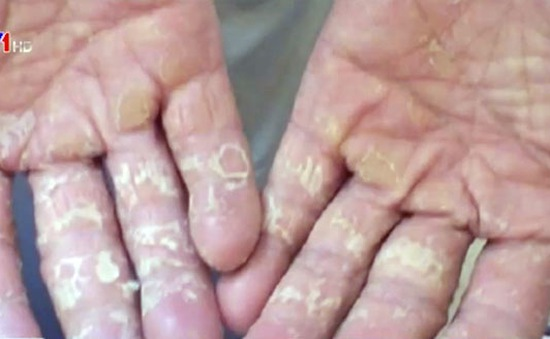 Cách phòng, trị các bệnh ngoài da phổ biến