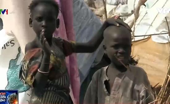 Suy dinh dưỡng đe doạ trẻ em Nigeria
