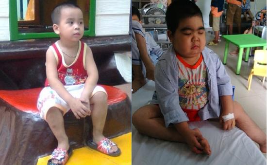 Hoàn cảnh đáng thương của bé trai kháu khỉnh biến dạng vì căn bệnh khó chữa