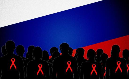 Nga lo ngại về đại dịch HIV/Aids
