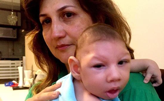 Virus Zika gây dị tật qua đường nhau thai