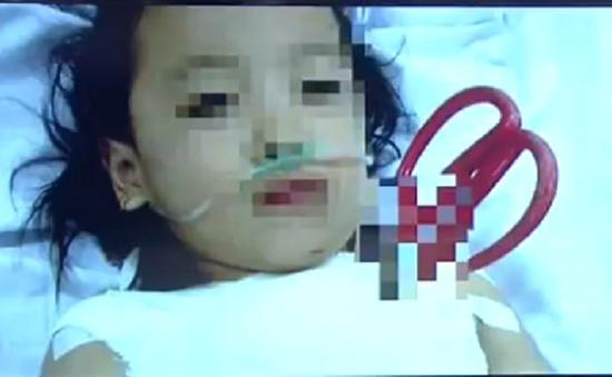 Cứu sống bé gái 5 tuổi bị kéo đâm thấu ngực tại TP.HCM