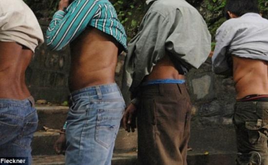 Chua xót chuyện người nông dân Nepal bị lừa bán thận