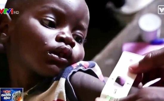 25% trẻ em Việt Nam dưới 5 tuổi suy dinh dưỡng thể thấp còi