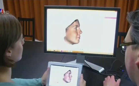 Công nghệ 3D giúp phẫu thuật mũi chính xác hơn
