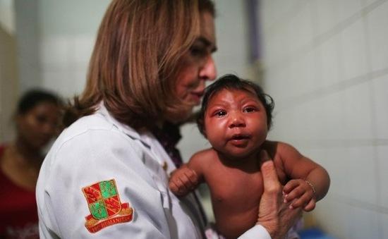 Nghi vấn chứng teo não ở trẻ không do muỗi truyền virus Zika