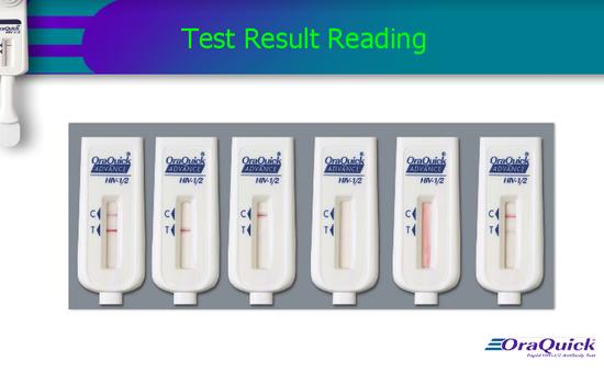 Tự xét nghiệm HIV bằng que thử sao cho đúng?