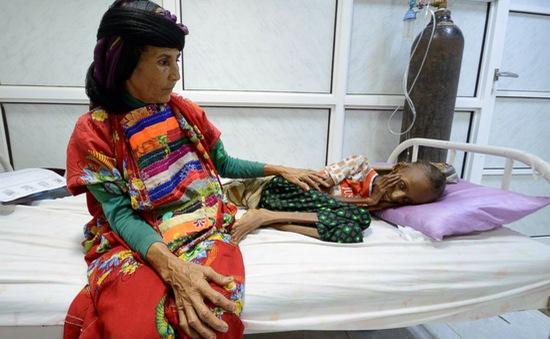 Hàng triệu người dân Yemen trước nguy cơ chết đói