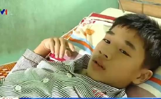 9 người thương vong do sét đánh tại TT-Huế