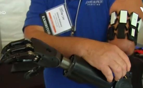 Cánh tay robot điều khiển bằng suy nghĩ tiên tiến nhất thế giới