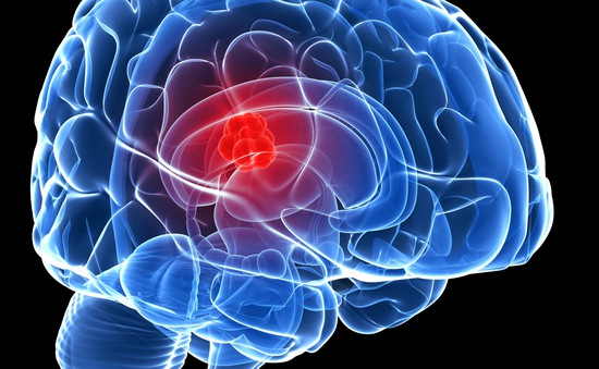 Phương pháp mới chống lại ung thư não