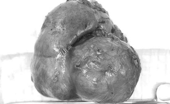 Phẫu thuật thành công cắt bỏ khối u thận gần 1kg tại TP.HCM