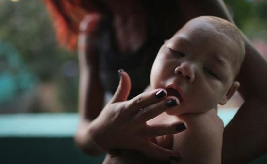 Bộ Y tế vào Đăk Lăk đánh giá trường hợp bé 4 tháng tuổi nghi mắc chứng đầu nhỏ