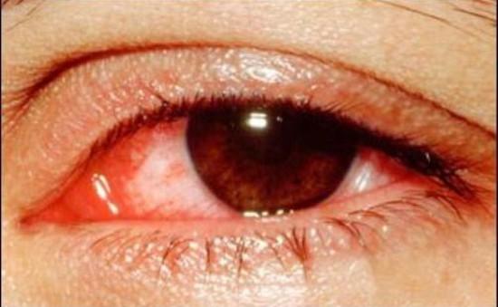 Bệnh đau mắt đỏ vào mùa: Cách phòng và điều trị