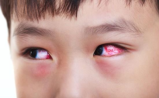 Bệnh đau mắt đỏ và cách phòng trị
