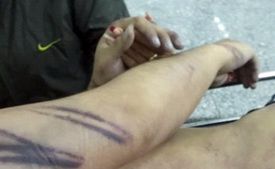 Ninh Thuận: Khởi tố vụ án dùng nhục hình dẫn đến chết người
