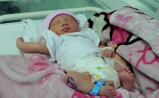 TP.HCM: Phẫu thuật cứu sống thai nhi bị dây rốn cuốn cổ có nguy cơ tử vong cao