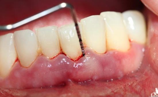 Phụ nữ mắc bệnh nướu răng có nguy cơ cao bị ung thư