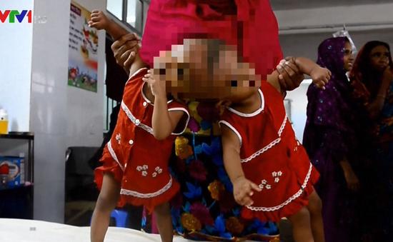 Cặp song sinh chào đời dính liền đầu tại Bangladesh