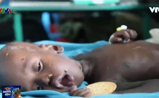Nam Sudan tuyên bố nạn đói ở nhiều vùng