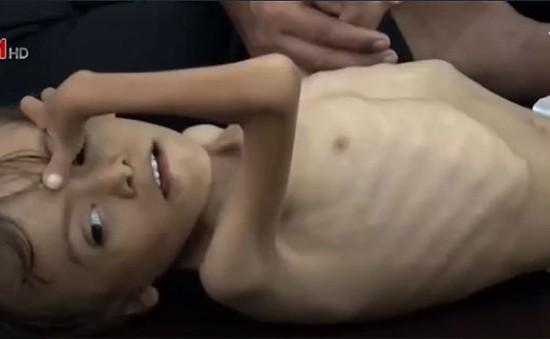 Thế hệ trẻ em suy dinh dưỡng sau chiến tranh tại Yemen
