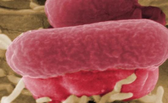 Mỹ thu hồi bơ đậu nành nhiễm khuẩn E.coli