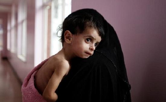 LHQ cảnh báo nạn đói lớn nhất thế giới tại Yemen
