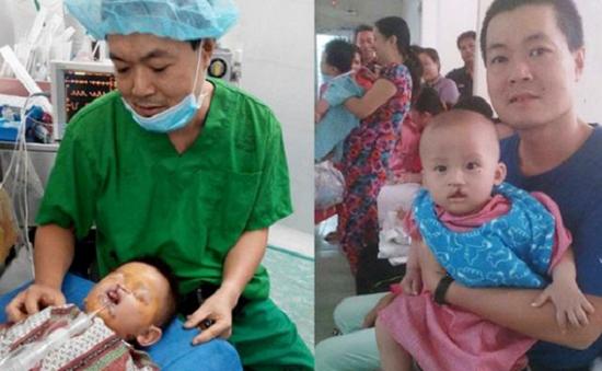 """""""Nụ cười nhân ái"""" phẫu thuật miễn phí cho trẻ dị tật ở miền Trung - Tây Nguyên"""