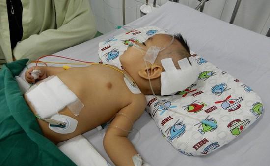 Thương cháu bé 11 tháng tuổi bị não úng thủy
