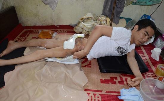 Nghị lực phi thường của chàng trai trẻ nằm liệt giường 9 năm trời