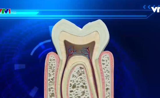 Bảo vệ răng nhạy cảm bằng chiết xuất từ trà xanh