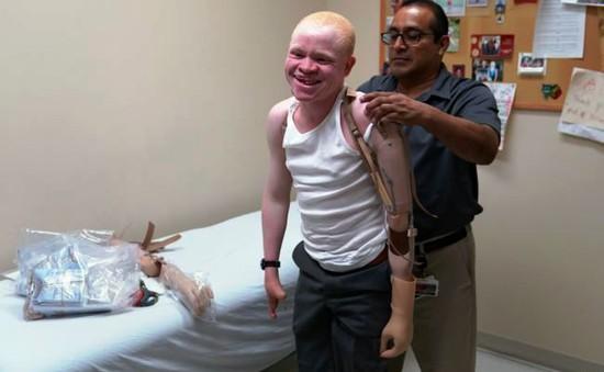 Cánh tay mới dành cho em bé bạch tạng Tanzania tại Mỹ