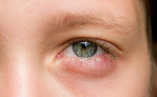 11 lý do khiến mắt sưng húp và cách khắc phục