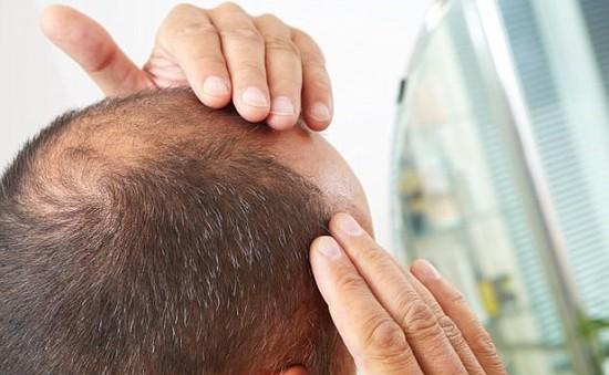 Nguy cơ bệnh tim mạch tăng cao ở những người hói đầu và có tóc bạc sớm
