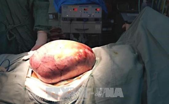 Bệnh viện Trung ương Huế: Phẫu thuật loại bỏ thành công khối u buồng trứng nặng 5 kg