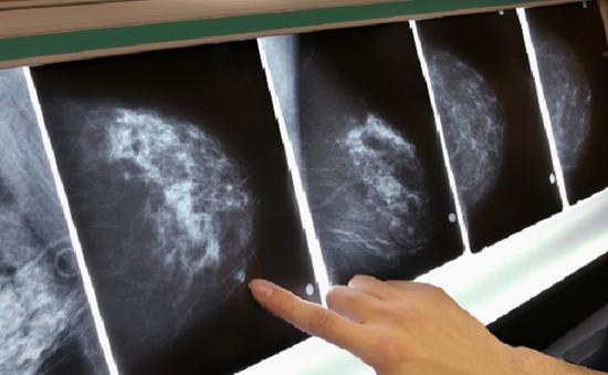 Phát hiện hơn 70 gen đột biến gây ung thư vú