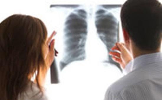 Số người mắc ung thư phổi tăng tại Việt Nam