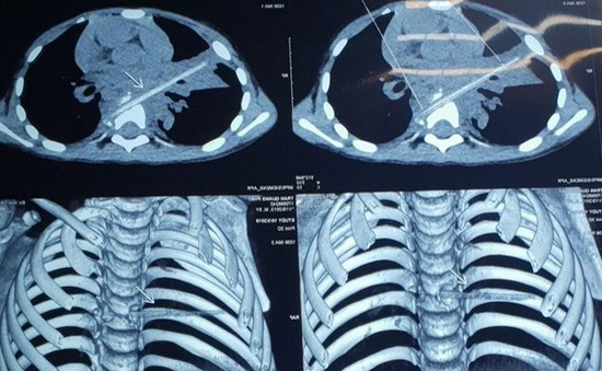 Bé trai 5 tuổi vỡ đốt sống, viêm phổi dai dẳng vì bị thanh nứa đâm