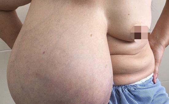 Cận cảnh khối u vú nặng gần 9kg gây lệch cột sống ngực người phụ nữ