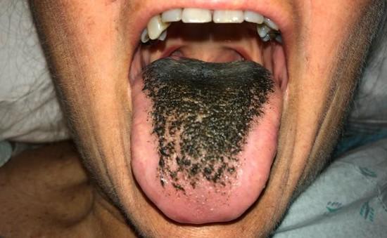 """Dấu hiệu lưỡi """"mọc lông đen"""" là do đâu?"""