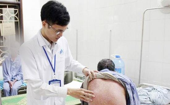 Khám và tư vấn bệnh vảy nến miễn phí tại Hà Nội