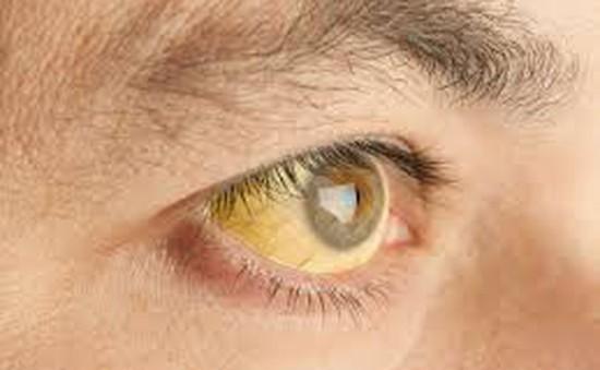 Có những dấu hiệu này ở mắt, bạn cần đi khám ngay