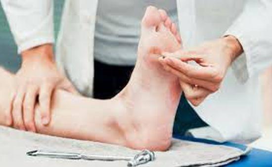 Điều trị biến chứng chân cho bệnh nhân đái tháo đường ở Australia