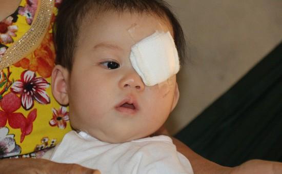 Thương thiên thần nhí 6 tháng tuổi phải bỏ con mắt vì ung thư võng mạc